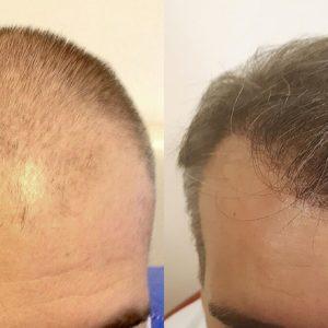 Hajbeültetés Műtéti Nap: 2020. nov. 20. Péntek. Kedvező csomag (3000 hajszál)