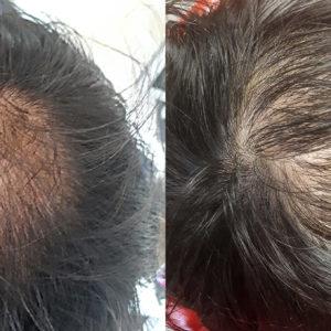 Hajbeültetés Műtéti Nap: 2021. Október 07. Csütörtök. Kedvező csomag (4000 hajszál)
