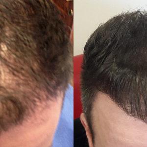 Hajbeültetés Műtéti Nap: 2021. Október 06. Szerda. Kedvező csomag (3500 hajszál)