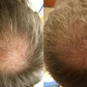 Hajbeültetés Műtéti Nap: 2021. Febr. 15. Hétfő. Kedvező csomag (4000 hajszál)