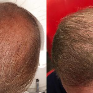 Hajbeültetés Műtéti Nap: 2021. Febr. 13. Szombat. Kedvező csomag (3500 hajszál)